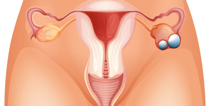 cancer de ovario que es
