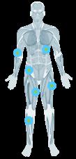 Unités sarcomes des tissus mous