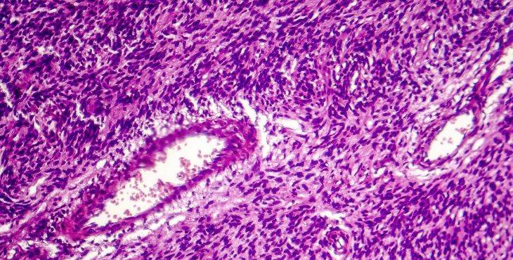 sarcomas tejidos blandos